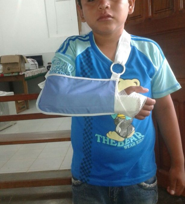 Putting Mano a Mano Supplies to Use in Bolivia: Rodrigo's Broken Arm